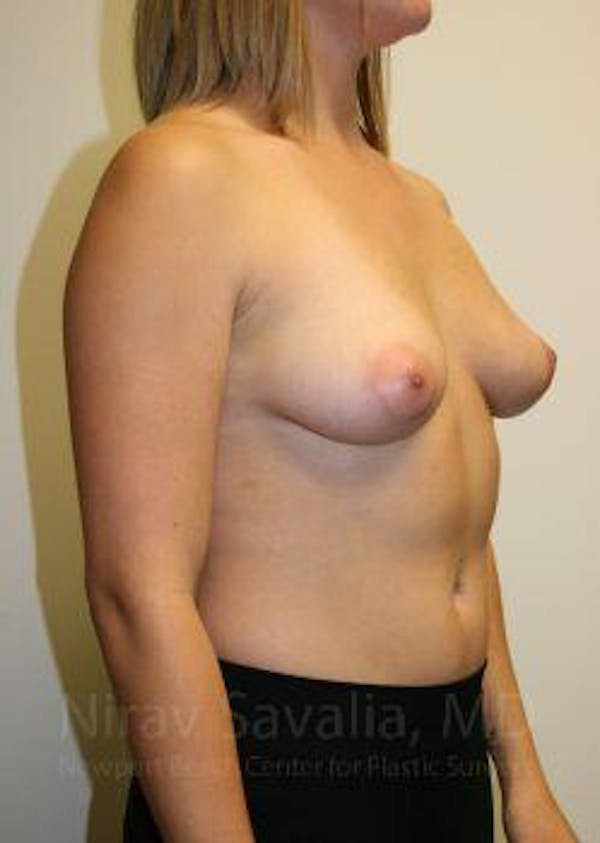 Breast Augmentation Gallery - Patient 1655593 - Image 7