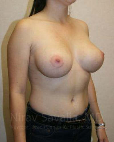 Breast Augmentation Gallery - Patient 1655593 - Image 8