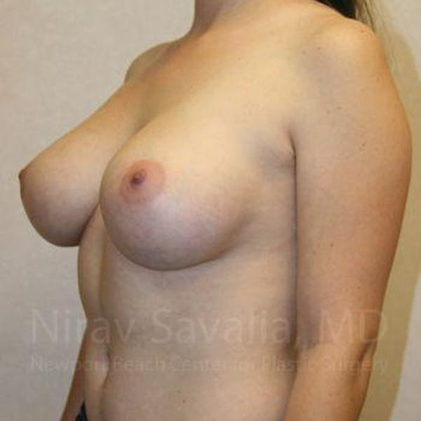 Breast Augmentation Gallery - Patient 1655593 - Image 10