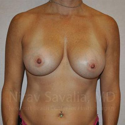Breast Augmentation Gallery - Patient 1655594 - Image 2