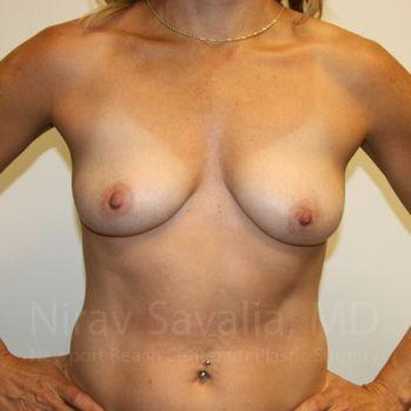 Breast Augmentation Gallery - Patient 1655594 - Image 3