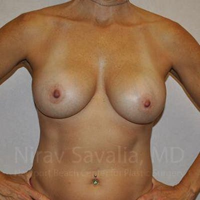 Breast Augmentation Gallery - Patient 1655594 - Image 4