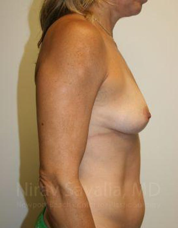 Breast Augmentation Gallery - Patient 1655594 - Image 5