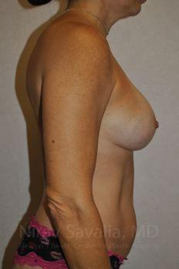 Breast Augmentation Gallery - Patient 1655594 - Image 6