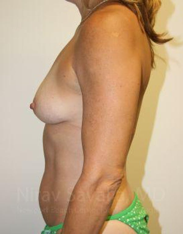 Breast Augmentation Gallery - Patient 1655594 - Image 7