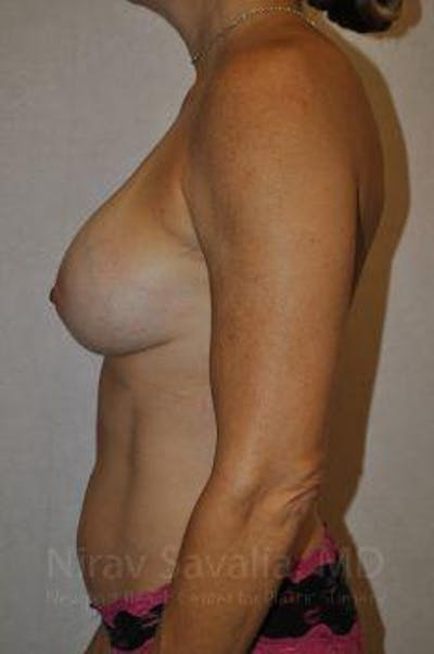 Breast Augmentation Gallery - Patient 1655594 - Image 8