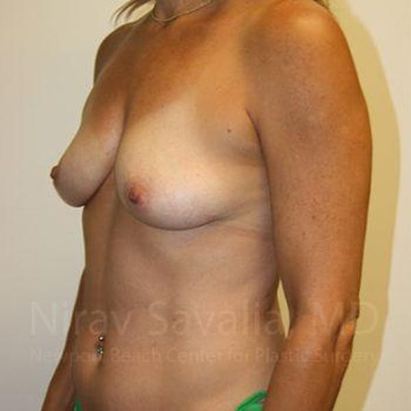 Breast Augmentation Gallery - Patient 1655594 - Image 9