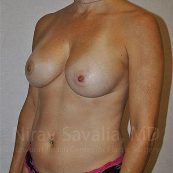 Breast Augmentation Gallery - Patient 1655594 - Image 10