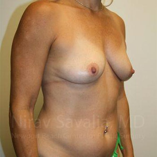 Breast Augmentation Gallery - Patient 1655594 - Image 11
