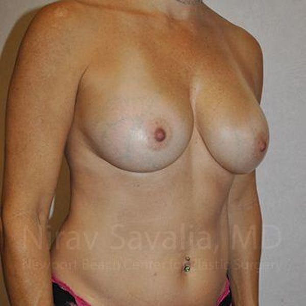 Breast Augmentation Gallery - Patient 1655594 - Image 12