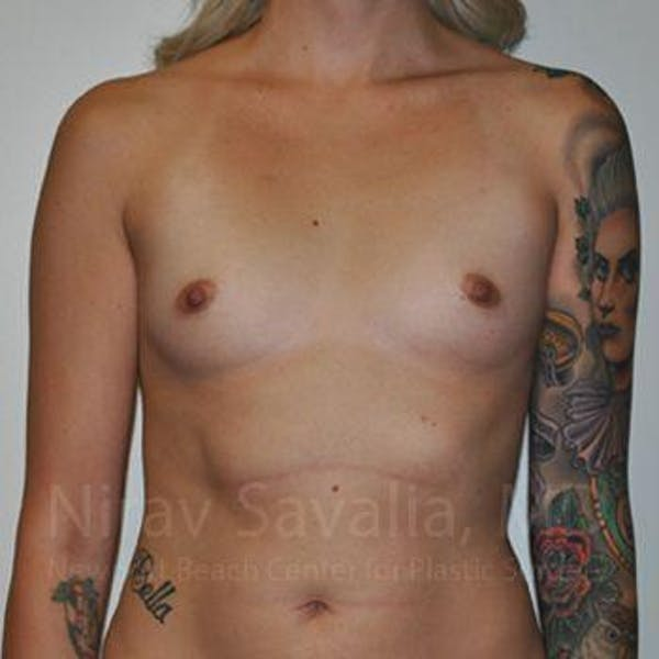 Breast Augmentation Gallery - Patient 1655595 - Image 1