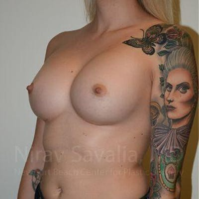 Breast Augmentation Gallery - Patient 1655595 - Image 8