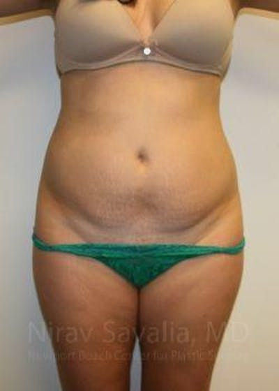 Abdominoplasty / Tummy Tuck Gallery - Patient 1655598 - Image 1