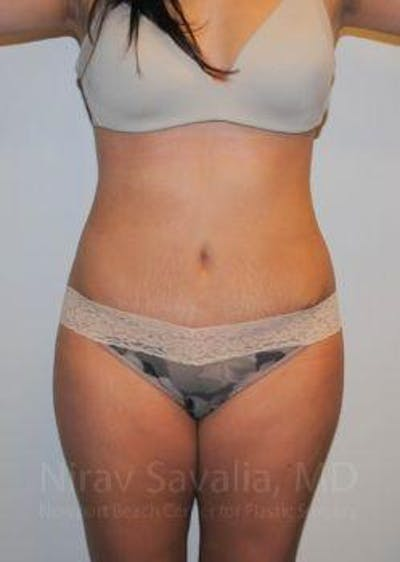 Abdominoplasty / Tummy Tuck Gallery - Patient 1655598 - Image 2