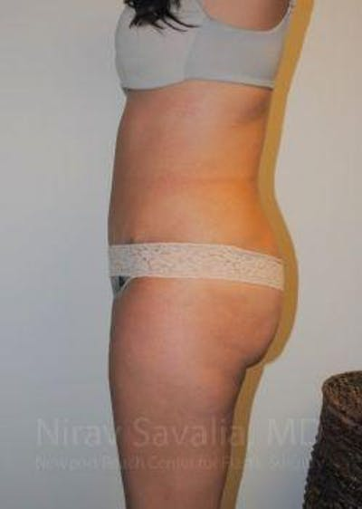 Liposuction Gallery - Patient 1655599 - Image 8