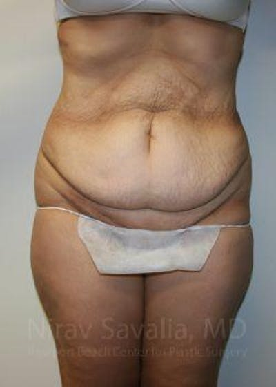 Abdominoplasty / Tummy Tuck Gallery - Patient 1655601 - Image 1