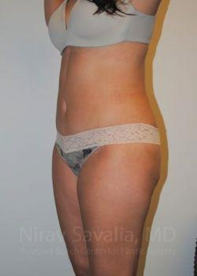 Liposuction Gallery - Patient 1655599 - Image 10