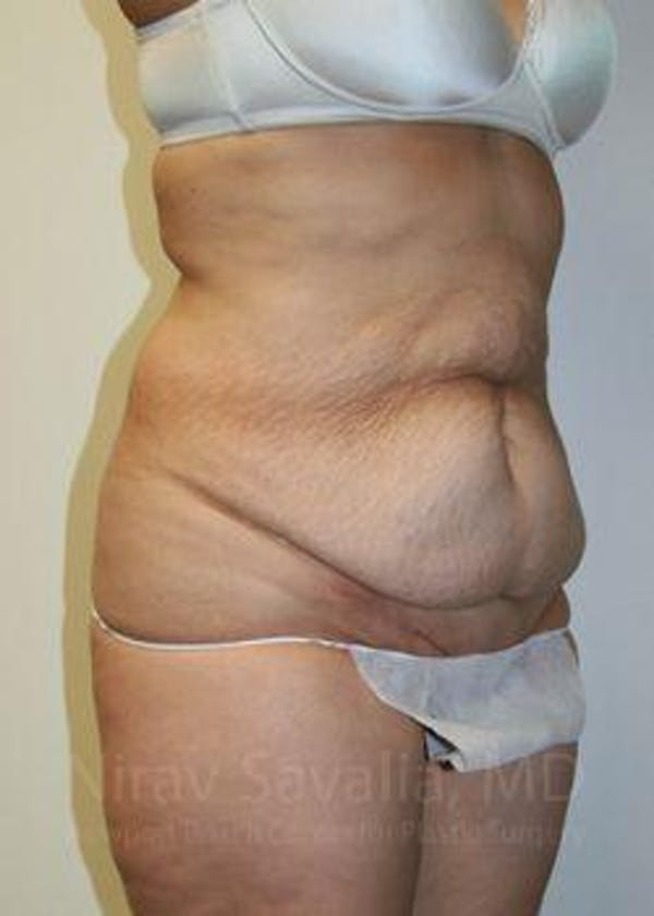 Abdominoplasty / Tummy Tuck Gallery - Patient 1655601 - Image 9