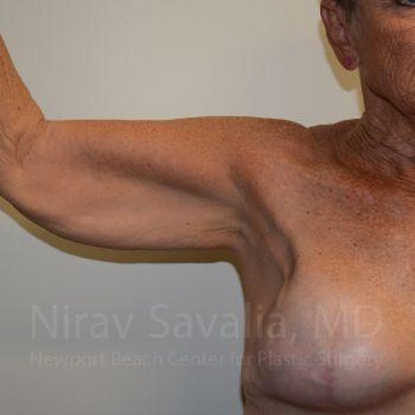 Arm Lift Gallery - Patient 1655602 - Image 1