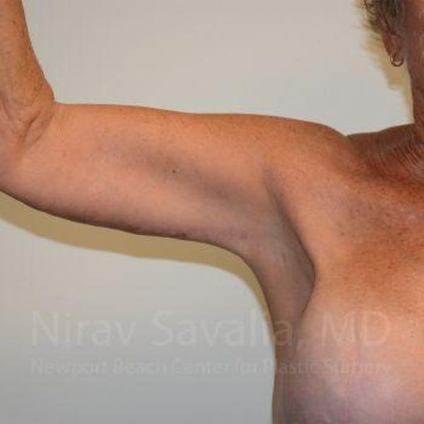 Arm Lift Gallery - Patient 1655602 - Image 2
