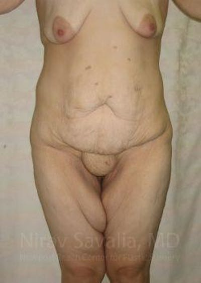 Thigh Lift Gallery - Patient 1655604 - Image 1