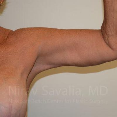 Arm Lift Gallery - Patient 1655602 - Image 4