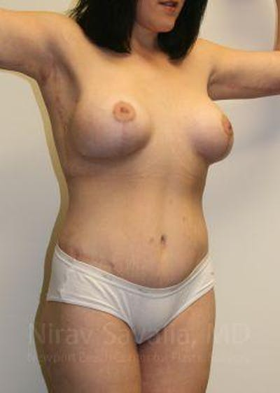 Thigh Lift Gallery - Patient 1655604 - Image 4