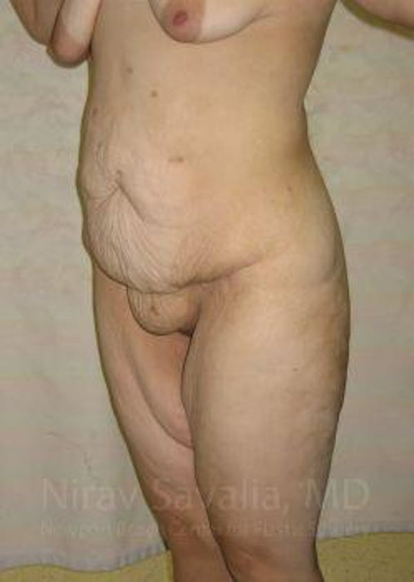 Thigh Lift Gallery - Patient 1655604 - Image 5