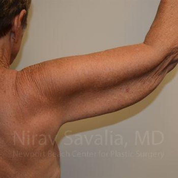 Arm Lift Gallery - Patient 1655602 - Image 7