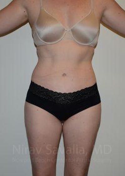 Abdominoplasty / Tummy Tuck Gallery - Patient 1655605 - Image 2