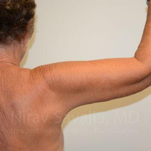 Arm Lift Gallery - Patient 1655602 - Image 8