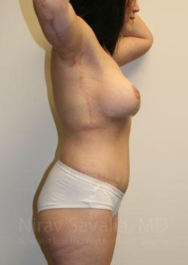 Thigh Lift Gallery - Patient 1655604 - Image 8