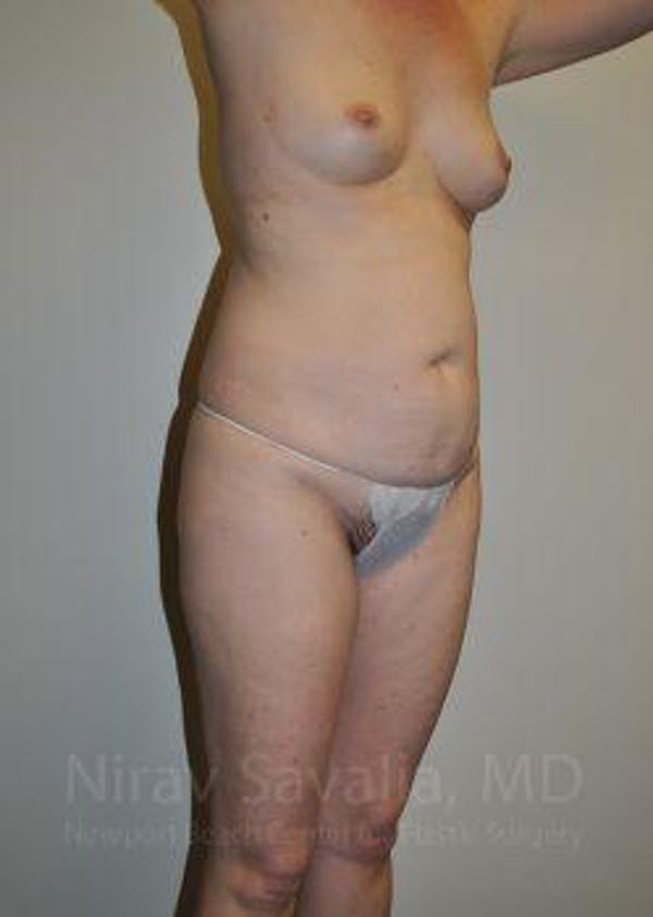 Abdominoplasty / Tummy Tuck Gallery - Patient 1655605 - Image 9