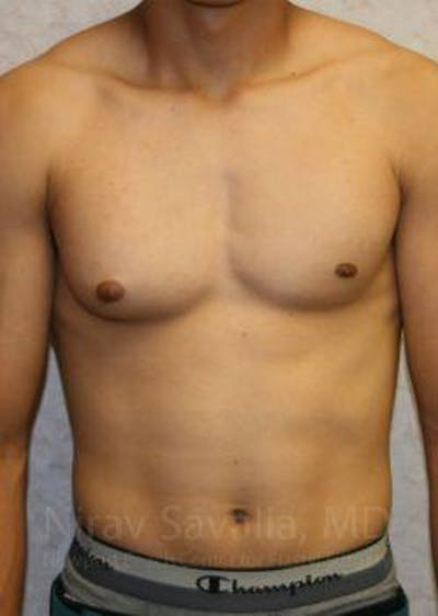 Male Breast Reduction Gallery - Patient 1655607 - Image 1