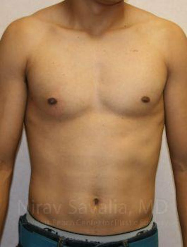 Male Breast Reduction Gallery - Patient 1655607 - Image 2
