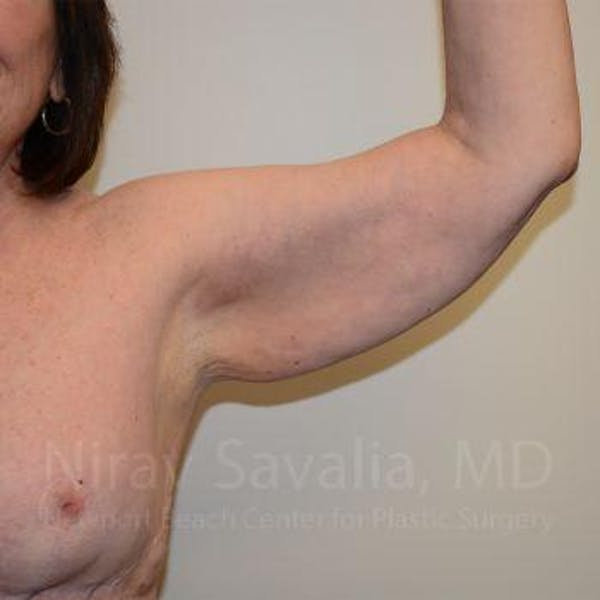 Arm Lift Gallery - Patient 1655606 - Image 5
