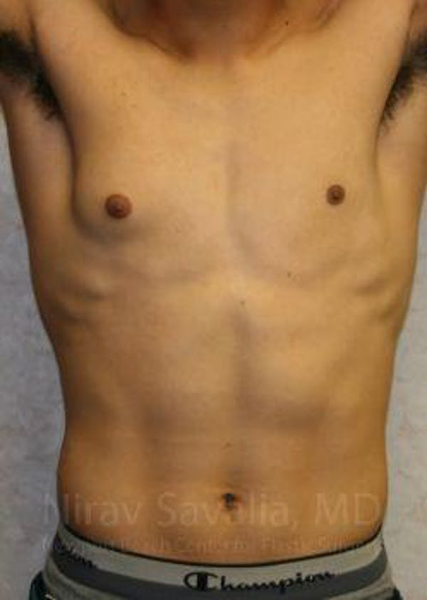 Male Breast Reduction Gallery - Patient 1655607 - Image 3