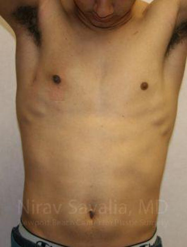 Male Breast Reduction Gallery - Patient 1655607 - Image 4