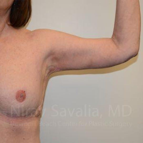 Arm Lift Gallery - Patient 1655606 - Image 6
