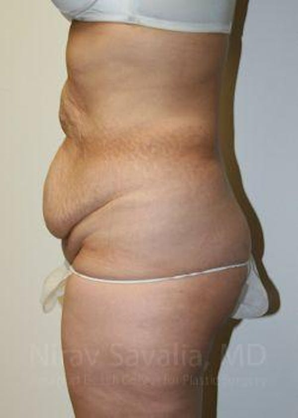 Liposuction Gallery - Patient 1655608 - Image 5
