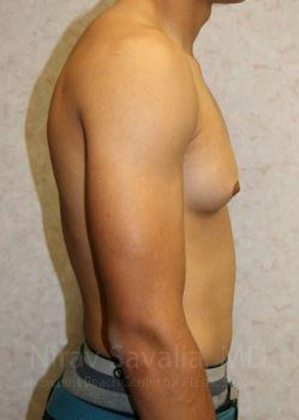 Male Breast Reduction Gallery - Patient 1655607 - Image 5