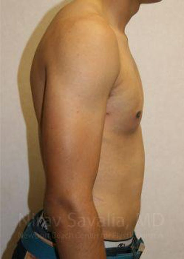 Male Breast Reduction Gallery - Patient 1655607 - Image 6