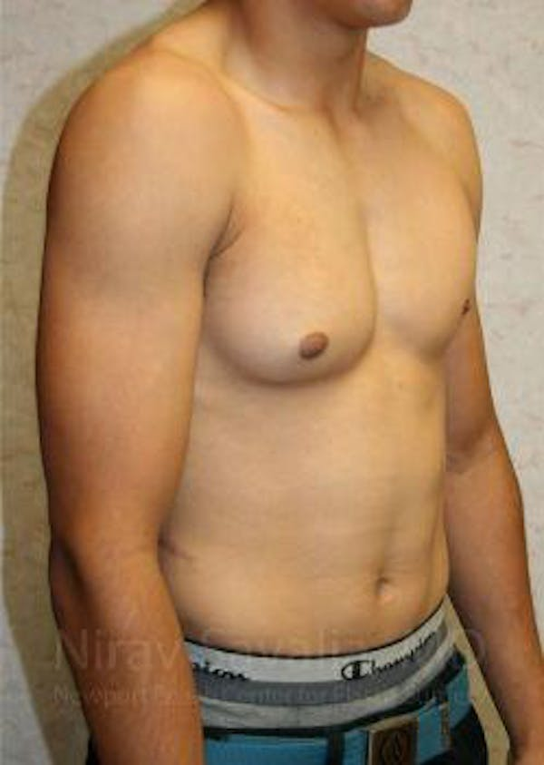 Male Breast Reduction Gallery - Patient 1655607 - Image 7