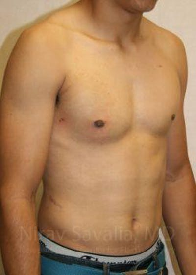 Male Breast Reduction Gallery - Patient 1655607 - Image 8