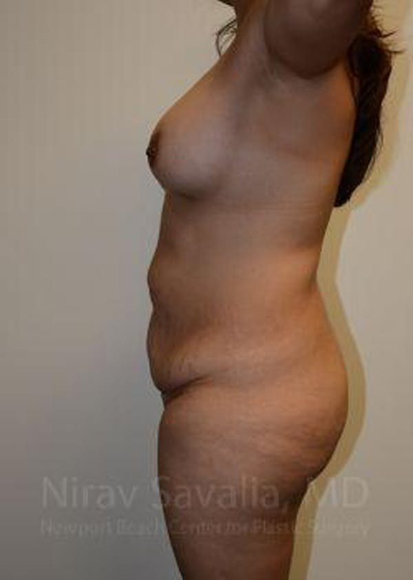 Abdominoplasty / Tummy Tuck Gallery - Patient 1655609 - Image 7