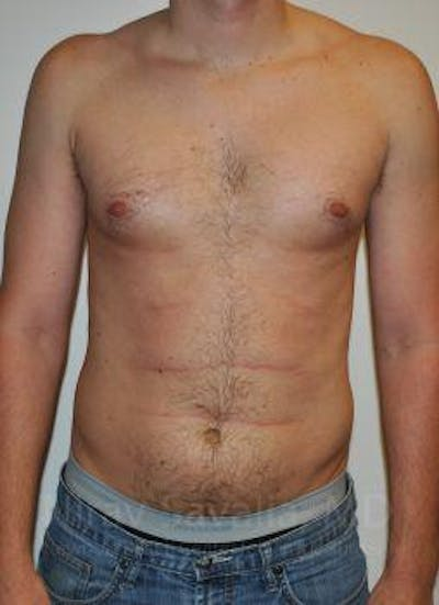 Male Breast Reduction Gallery - Patient 1655612 - Image 1