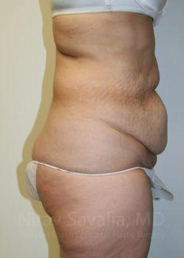 Body Contouring after Weight Loss Gallery - Patient 1655611 - Image 3