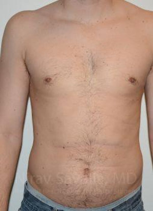 Male Breast Reduction Gallery - Patient 1655612 - Image 2