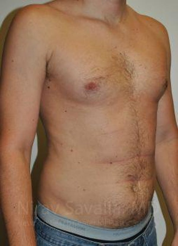 Male Breast Reduction Gallery - Patient 1655612 - Image 3