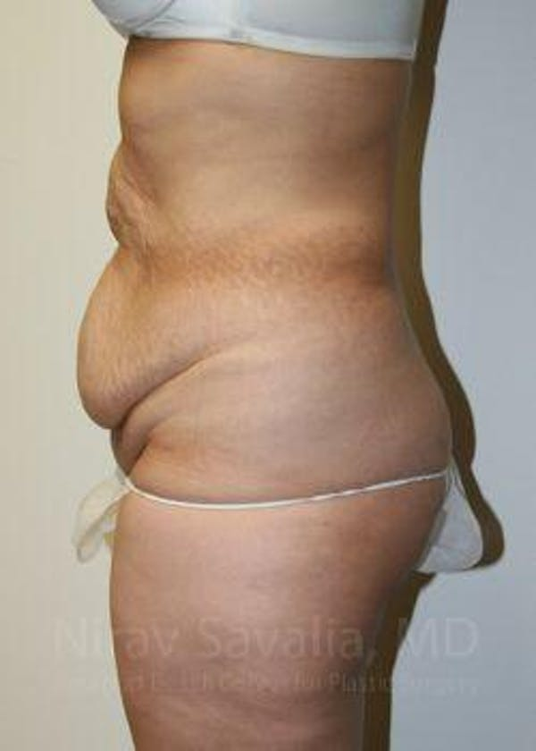 Body Contouring after Weight Loss Gallery - Patient 1655611 - Image 5